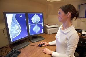 Leefstijl belangrijk voor overleving borstkanker