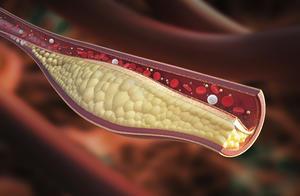 Vitamine K2 herstelt elasticiteit van bloedvaten